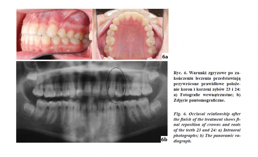 Całkowita transpozycja kła i pierwszego zęba przedtrzonowego w szczęce – opis przypadku