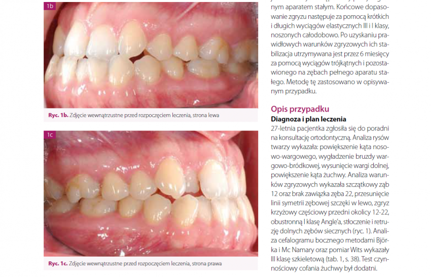Niechirurgiczne ortopedyczno-ortodontyczne leczenie dorosłej pacjentki z III klasą szkieletową, zrudymentowanym zębem 12 i brakiem zawiązka zęba 22