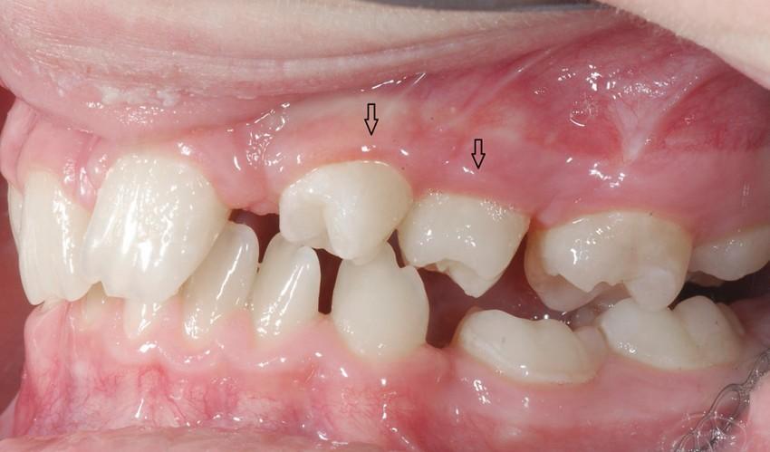 Leczenie ortodontyczno tranplantologiczno zachowawcze, brak zawiązków zębów