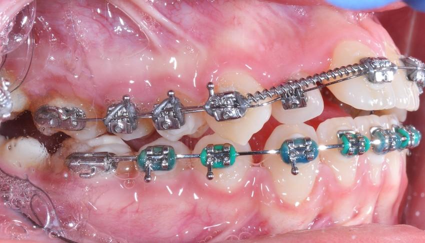 Stłoczenia zębów i asymetria żuchwy.
