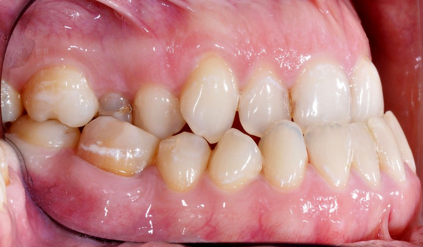progenia i zgryz otwartym szkieletowy (long-face syndrom)