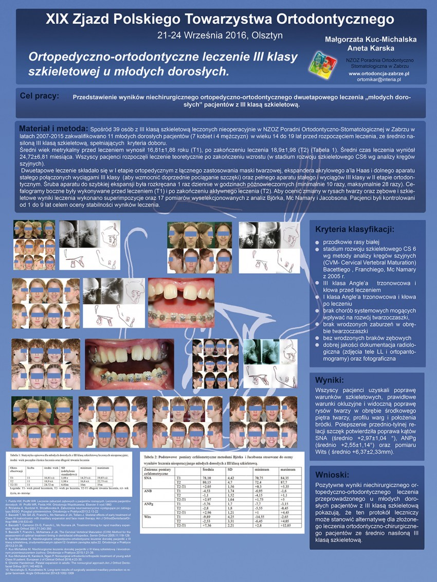 Ortopedyczno-ortodontyczne leczenie III klasy szkieletowej u młodych dorosłych.