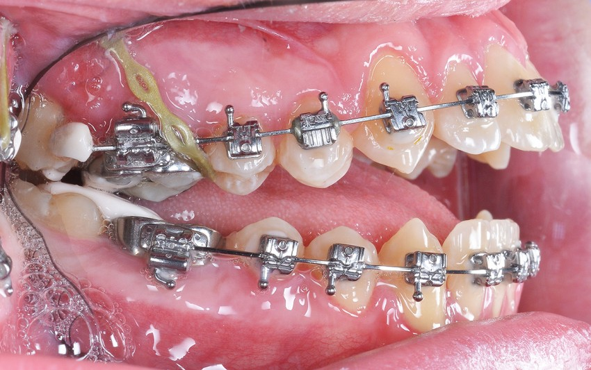 Zgryz w trakcie leczenia, mikroimplanty do podniesienia bocznych zębów
